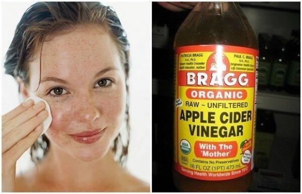 TONE ANDTIGHTEN PORES Vinegar balances the pH of the skin and acts as an astringent on oily complexions. Stir up half and half mixture of Apple cider vinegar and water to use as a toner before your daily moisturizing routine ACV also has alpha-hydroxyacids that gently exfoliate dead skin.