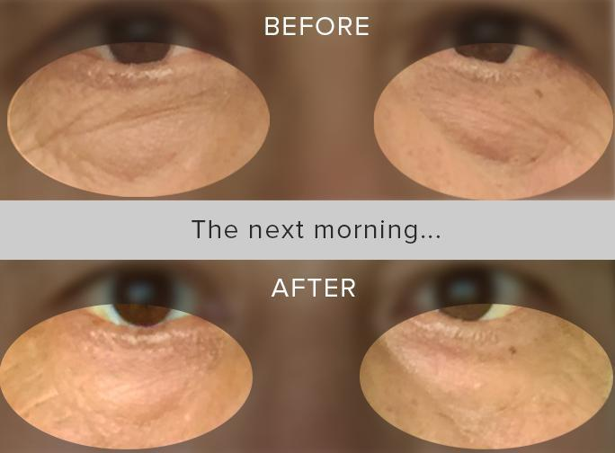 Real People. Real Results.Don't believe us? See for yourself! This before & after is from just ONE overnight use! Since the hydrogel retains its moisture for over 8 hours, you can wear them overnight, allowing hydration and beneficial ingredients to fully nourish the skin.Get your masks here.