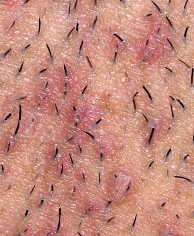 Get Rid Of Ingrown Hair by Nichole Knight - Musely