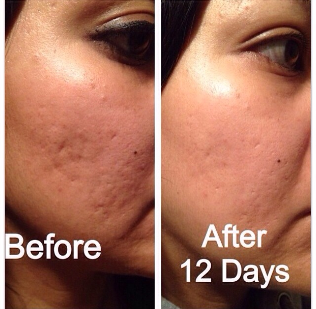 Nerium-AD is TRUELY a miracle cream!