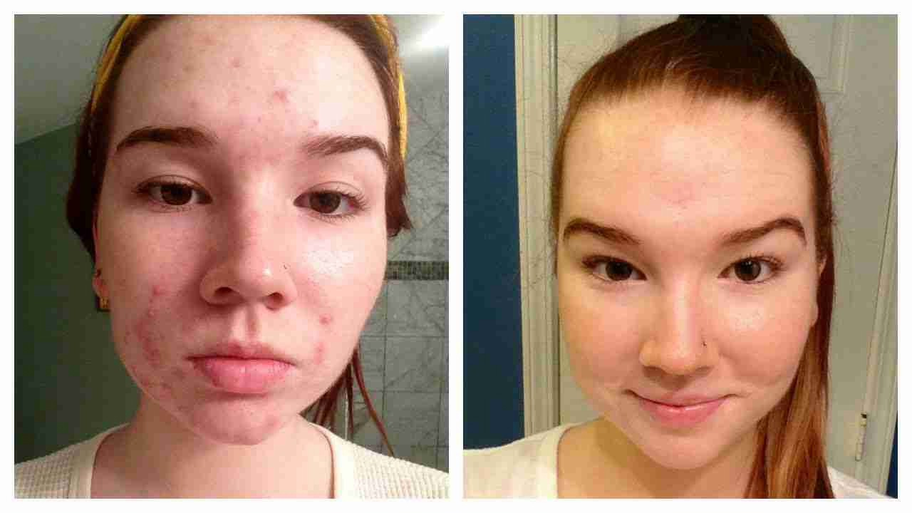 (This is just a photo from google) soon you should start to notice a difference as well as start to feel cleansed c: