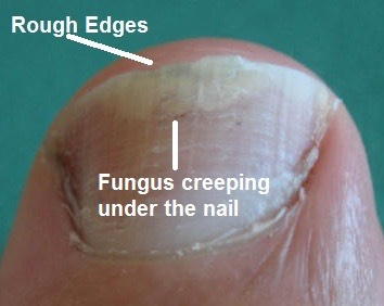 If you see this happening on either your finger or toe nails, that is the beginning of nail fungus. It can get extremely severe if not treated quickly. It can also spread. You can get nail fungus many different ways. What is most important is that you start treating it ASAP