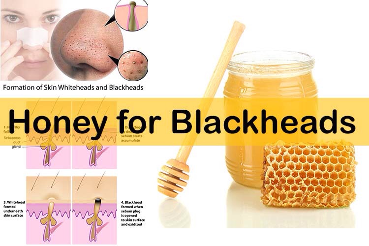 Honey Honey is the best choice to remove blackheads. This should be applied to problem areas for about 30 minutes.