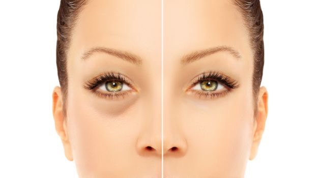 Causes: Majority of people get dark circles under eyes as they grow older, because the collagen in eyes tends to break down, making out eye-lids and the surrounding area more transparent. It is just a fact of life that most people need to come to terms with. However, there are several other causes of dark circles besides age, such as: