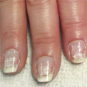 Want to get rid of your ruined gel nails ???