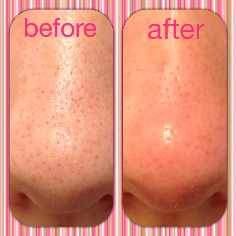 blackheads leave very easily by pinching! (No pain!)  It is way better than before, isn't it?