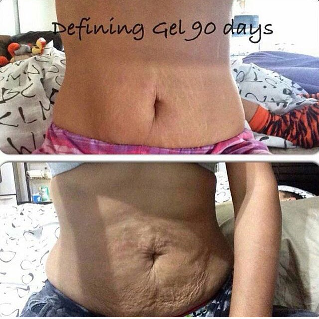 The defining gel is definitely one of my favourite products from It Works! Us ladies who unfortunately have cellulite on our thighs, or maybe even our tummies, can use this product to help it disappear for good!! :) ask me how you can try it out today! (705)-427-7329