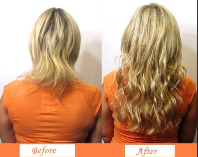 Micro extensions pros and cons