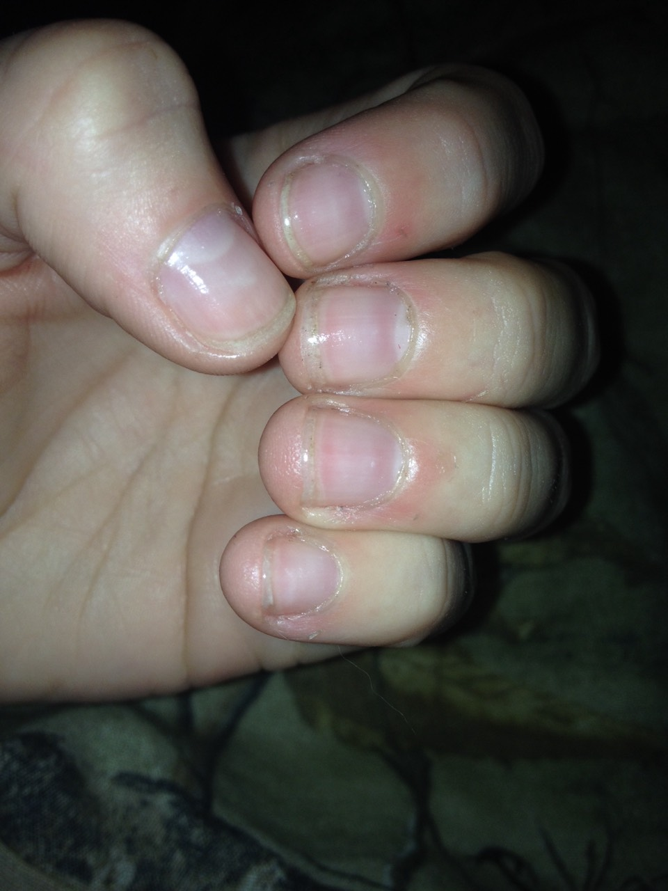 Better right? They're not perfect and a little Yellow and dirty BUT that is normal for growing your nails out. Your nails are still adjusting and will eventually attach to the skin under your nails. Please remember to like and share with friends and family, have more nail confidence!(: