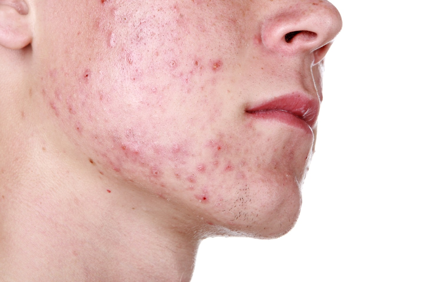 Use cotton balls and rubbing alchol to get rid of acne works awesome! And super cheep