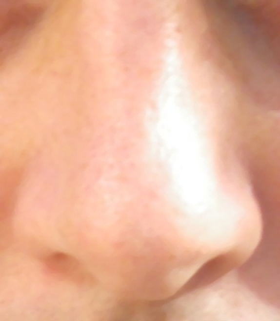 Put Vaseline on your nose every day to make it soft and smooth