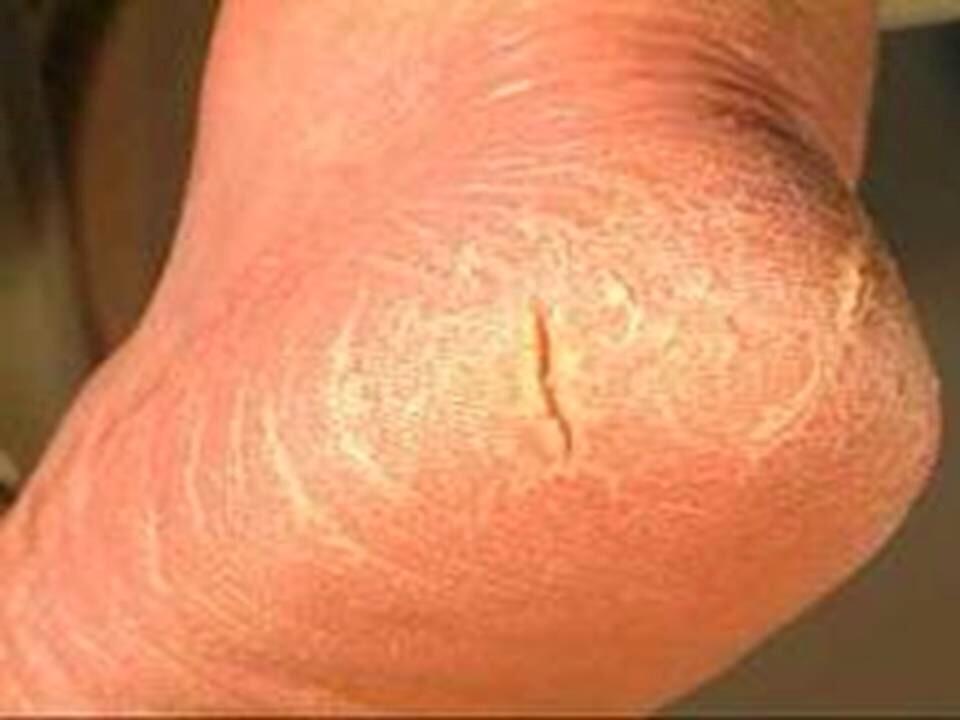 Покалывание в ступнях ног при сахарном диабете