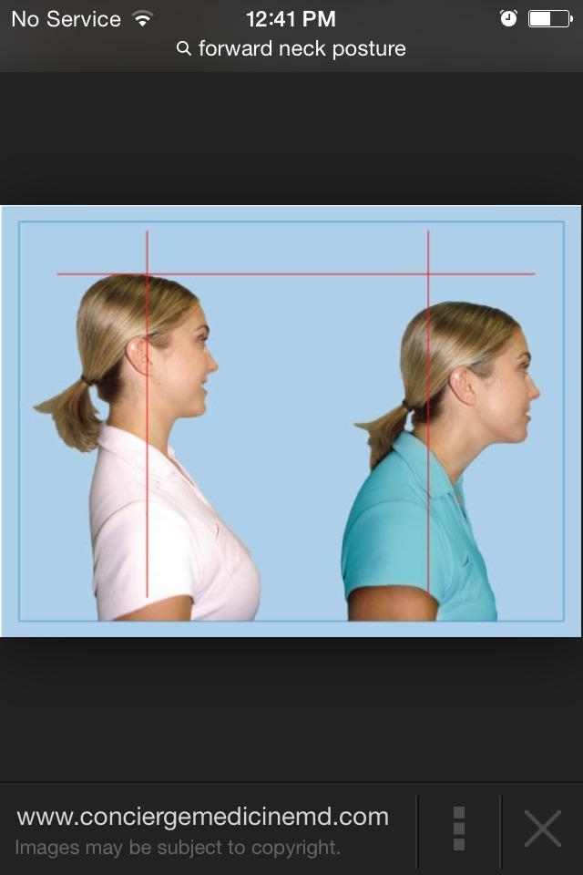 Forward neck, neck pain, and headaches.