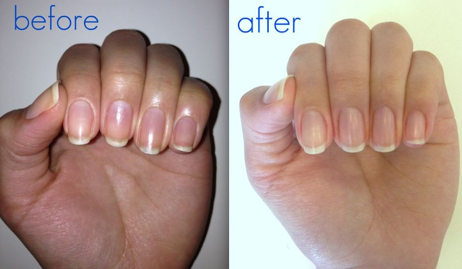 Nail Polish Before And After