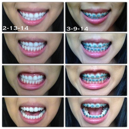 This is a before (right) and after (left) of what your teeth will look like when you have braces!