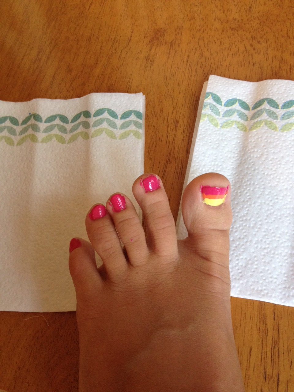 Paint your other toenails one of the following colors: Hot pink Orange Yellow