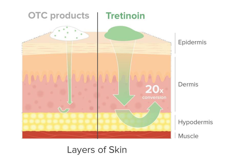 Tretinoin is stronger, works faster, and is more powerful than any over-the-counter retinoid. In fact, the lowest Rx concentration can be 20 times stronger than the highest amount allowed by the FDA in drugstore products.  Tretinoin works by speeding up the rate at which your body replaces skin cells, stimulating collagen production, and exfoliating the top layers of skin to reveal, fresher younger-looking skin underneath.