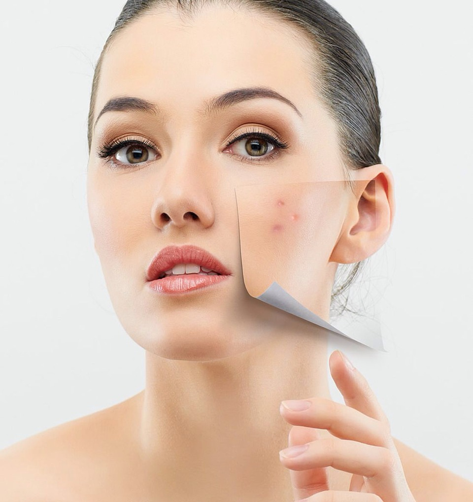Does minimize pimples and pores