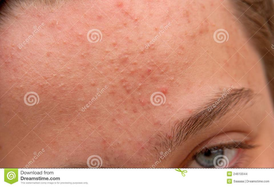 Forehead. Breakouts across the forehead are often triggered by stress or sleep deprivation. Make sure to log 7 to 9 hours of beauty rest a night to keep your forehead clear.
