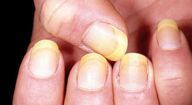 if you have yellow  nails say goodbye to them!!