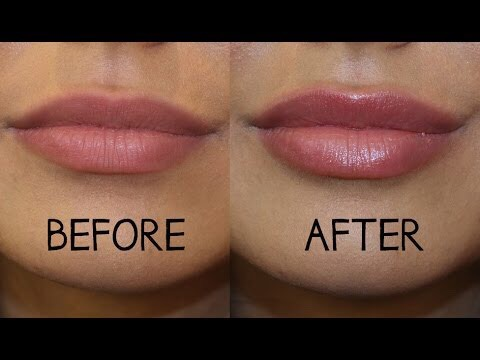 Using cinnamon oil or pill to get bigger lips