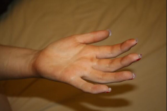 Leaking mitt when applying fake tan? Want to remove excess fake tan from palm of hands to avoid the unnatural look? Continue to follow rest of the steps