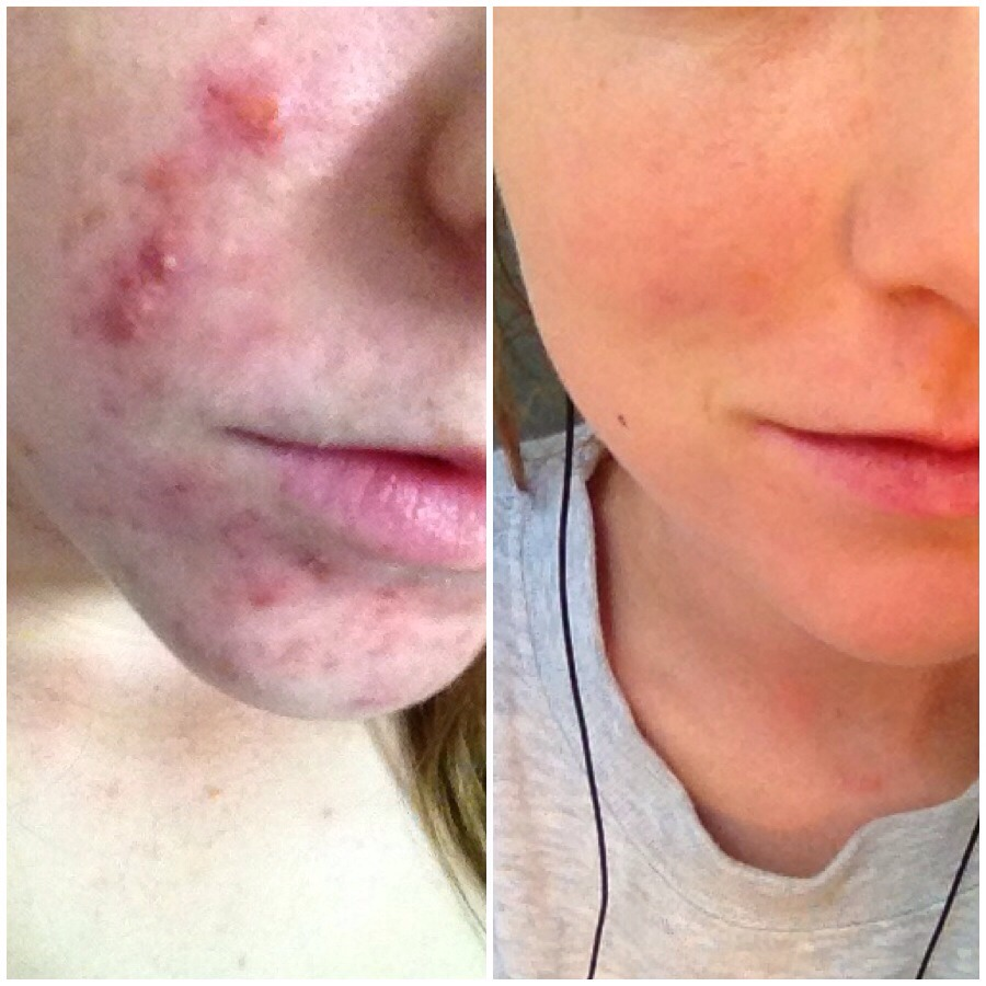 This photo is 9 months apart. The one on the left when I was on the pill, and the right after I had gone on roaccatane. I had cystic acne and it's completely cleared it up. I only have a few expected scars now. You just get it prescribed from your dermatologist.